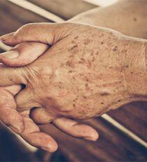 Почему на руках появляются пигментные пятна? Какие основные методы лечения существуют на сегодняшний день? Помощь народной медицины и кремов с iHerb