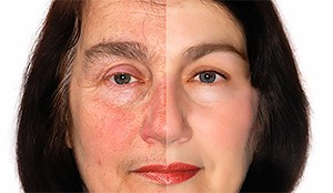total-skin-rejuvenation