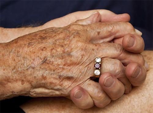 коричневая пигментация на руках