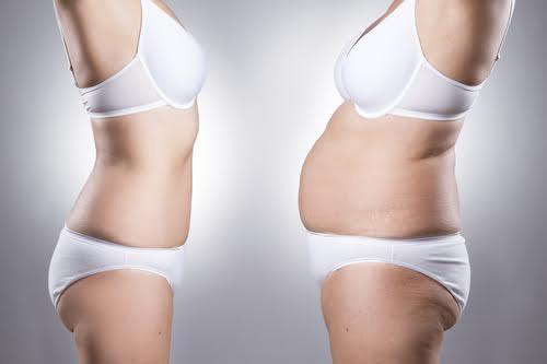 худая и толстая дамы