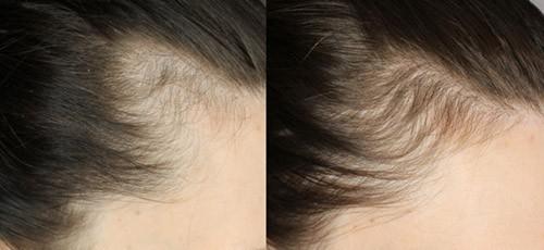 магниевое масло для волос
