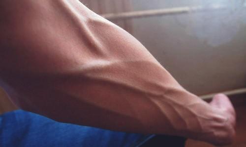 вены на руке