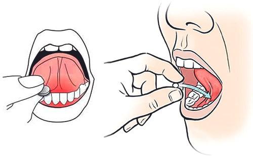 прием витаминов под язык