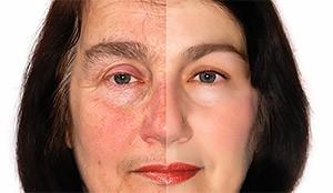 total-skin-rejuvenation