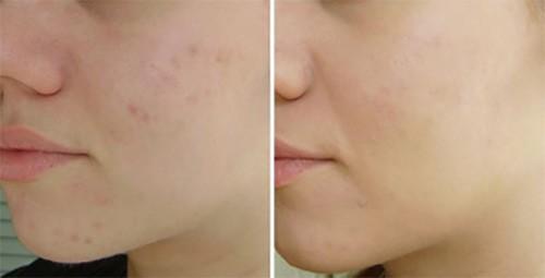 кожа лица после ББ крема